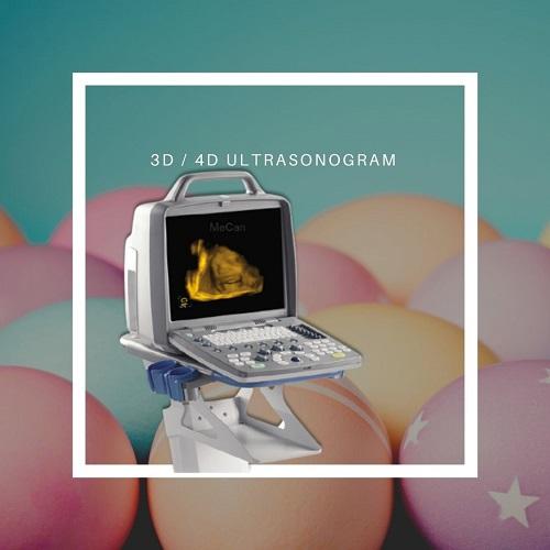 3D/4D আল্ট্রাসনোগ্রাম